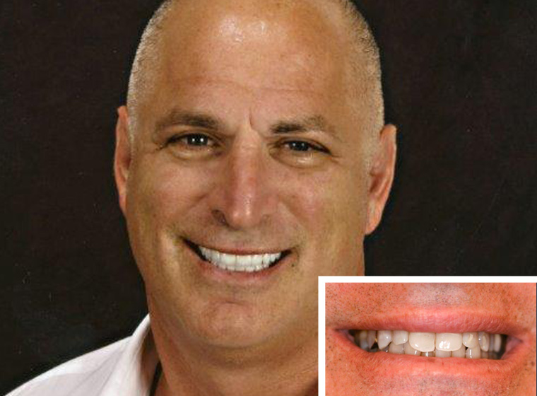 Another porcelain dental veeners patient in Oceanside smiles.