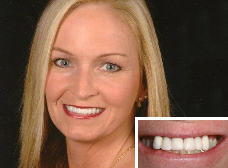 Actual patient who get beautiful porcelain veneers near Fallbrook.