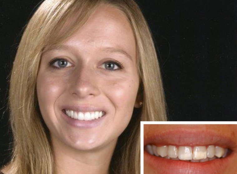 Patient who received aesthetic dentistry work near Fallbrook CA.