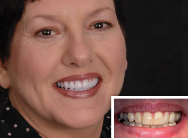 Woman who received aesthetic dentistry work from a cosmetic dentist in Oceanside.
