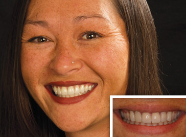 Woman who needs cosmetic dentistry services near Fallbrook and Vista CA.