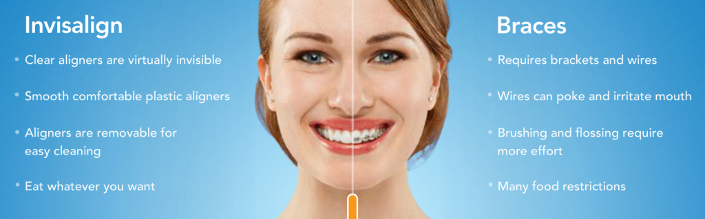 Smiling girl used Invisalign clear braces to get straight teeth in Oceanside CA.