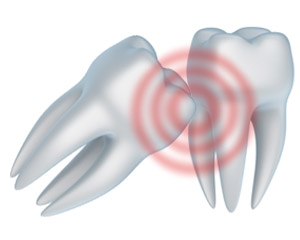 A tooth extraction near Fallbrook and Vista CA can help those with impacted wisdom teeth.