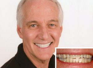 Sedation dentistry patient loves receiving laughing gas in Oceanside during his dental procedures.