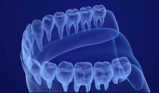 Digital x-rays used at Oceanside Dental Excellence assist in effective treatment.